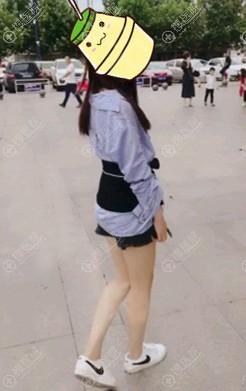 到哈尔滨诺嬄美做大腿吸脂半个月效果图