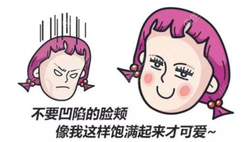 面部脂肪填充全脸