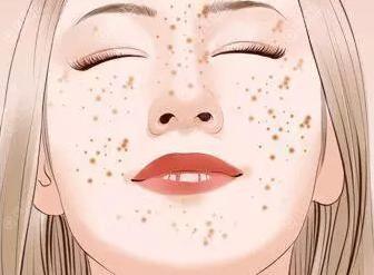 有色斑困扰的你可以到包头华美分斑分治成功祛斑