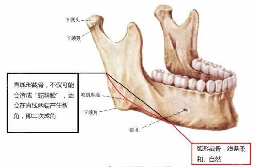 下颌角手术切除示意图
