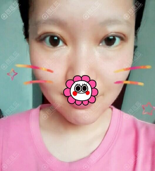 刘月丽双眼皮恢复半个月效果