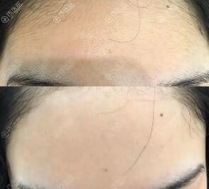 额头脱毛对比图