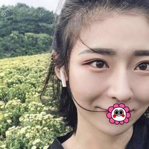 烟台壹美刘昆鹏假体隆鼻效果怎么样?