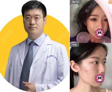 大连沙医生吴紫权双眼皮案例
