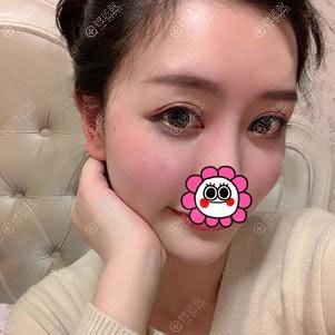 重庆艺星罗宁川做自体脂肪面部填充后恢复一周