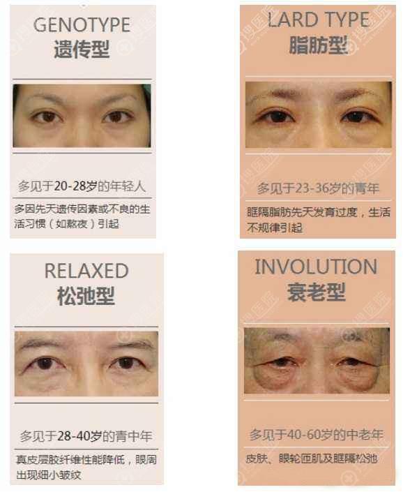 眼袋形成的原因