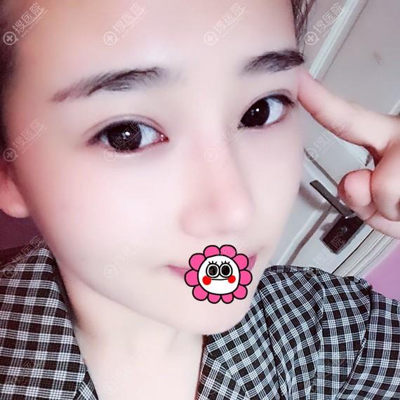 重庆美莱韦小勇做隆鼻效果怎么样?