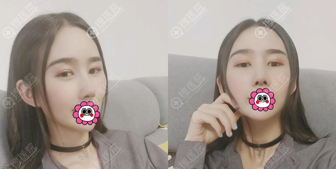 昆明韩辰陈曦肋软骨隆鼻术后恢复半个月