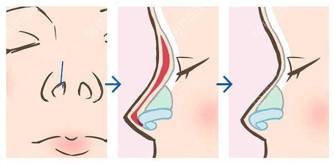 鼻假体取出会形成挛缩吗?