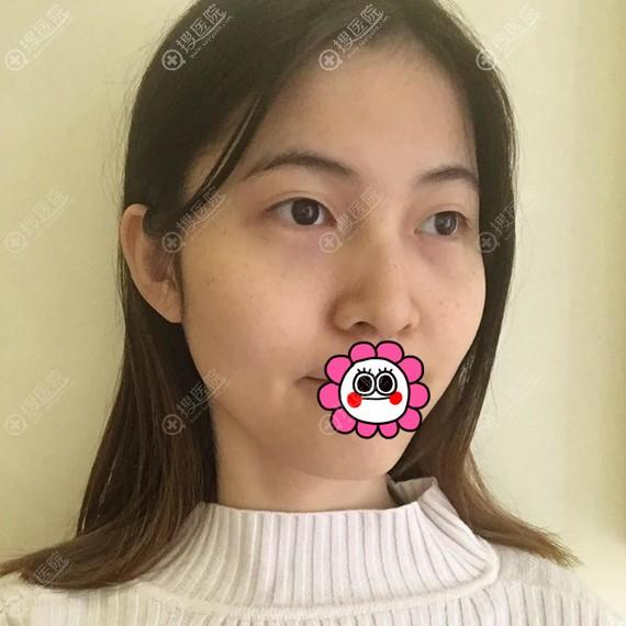 到北京艺美做面部吸脂前