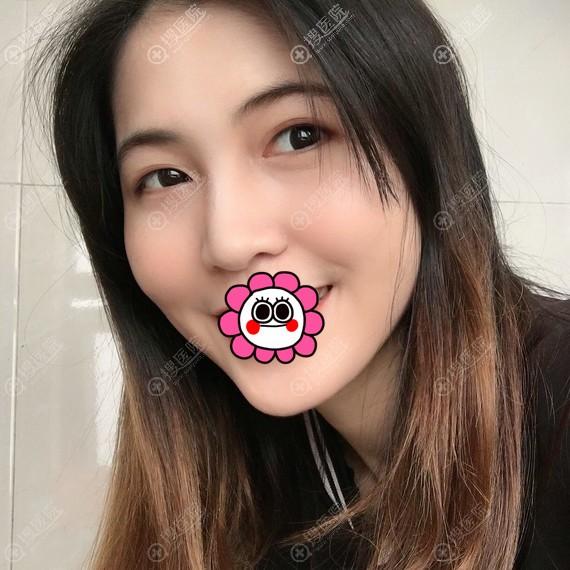 北京艺美面部吸脂恢复三天