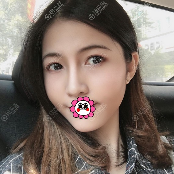 北京艺美巩敏面部吸脂案例