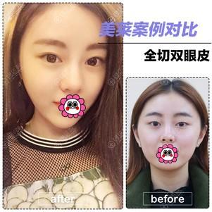 北京美莱双眼皮效果怎么样?