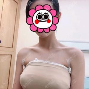 假体隆胸术后恢复3天