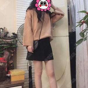 北京新星靓索慧君大腿吸脂效果怎么样?