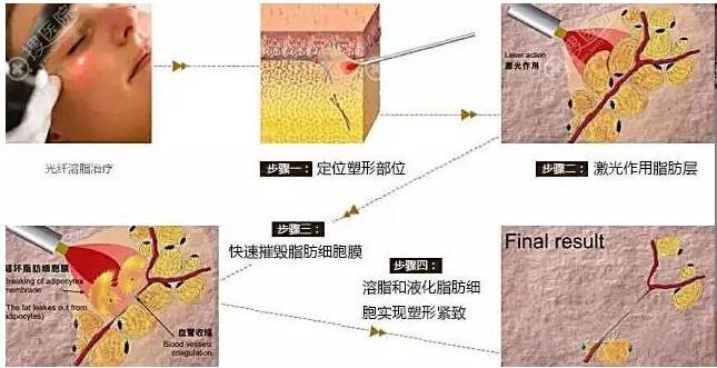 光纤溶脂原理