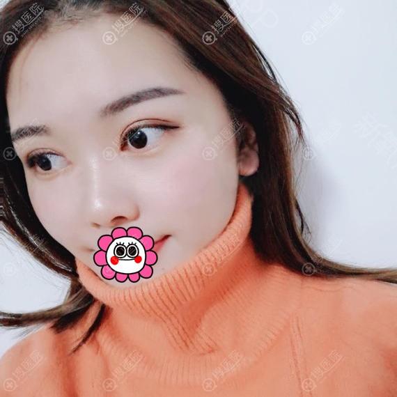 台州艺星阮凯双眼皮恢复两个月效果