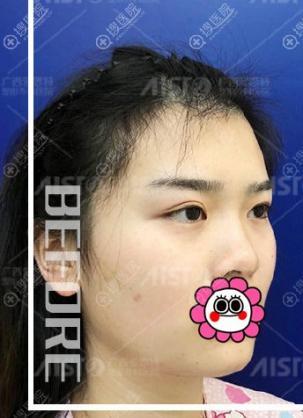 想改善面部轮廓不如到广西爱思特找李俊明做面部脂肪填充试试