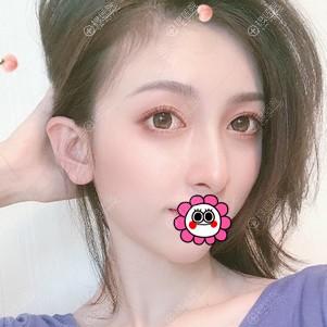 贵阳利美康童大潮做双眼皮恢复两个月案例