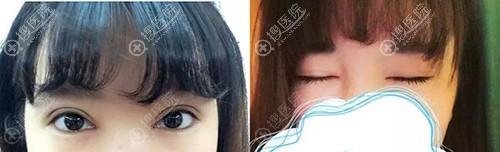兰州皙妍丽做双眼皮恢复一个月效果