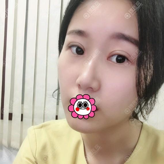万州华美紫馨恢复一个月的双眼皮效果