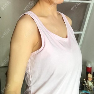 做假体隆胸前只有A罩杯