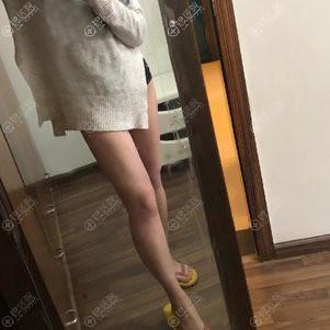 昆明韩辰陈宁大腿吸脂恢复一个月案例