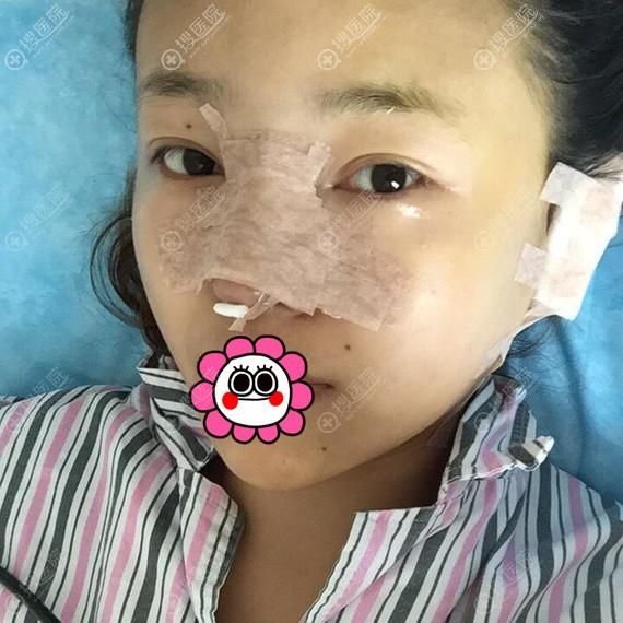 隆鼻术后即刻