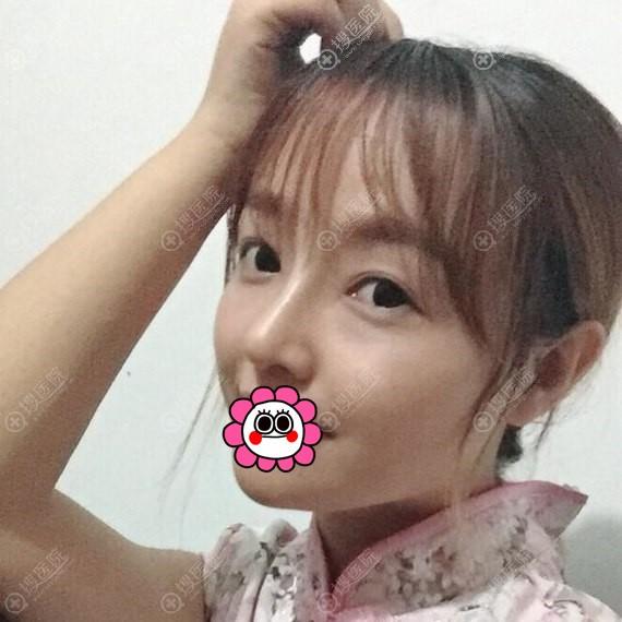 济南瑞丽管玉龙做鼻综合恢复一个月效果