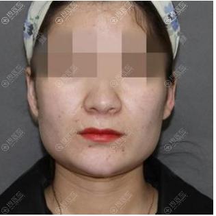 北京圣嘉新张笑天下颌角磨骨案例