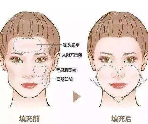 面部脂肪填充前后效果对比图
