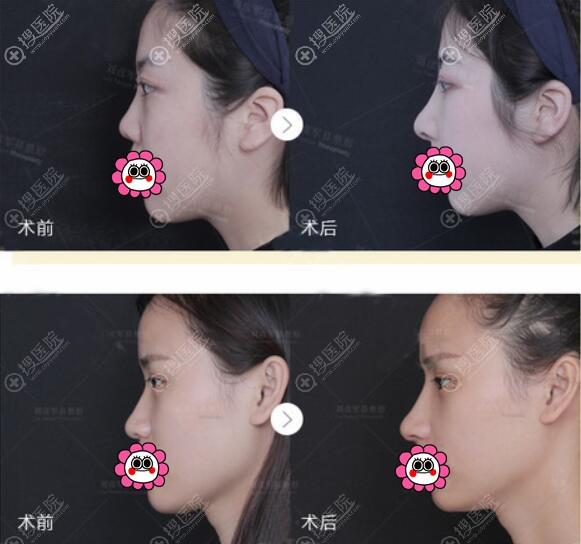 北京沃尔刘彦军鼻整形案例对比图