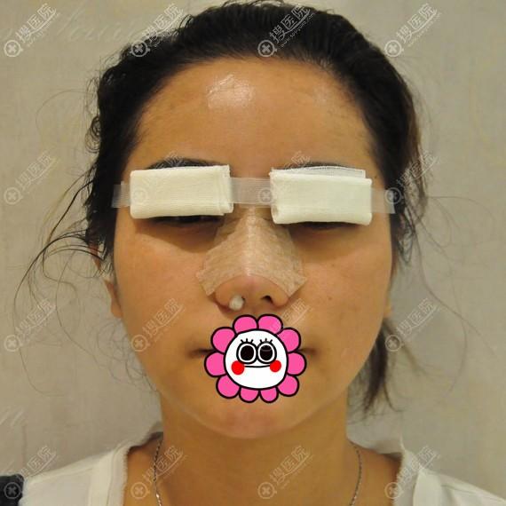 做完双眼皮和隆鼻后即刻