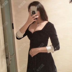 到沧州静港做自体脂肪隆胸后恢复三个月有了性感的乳沟