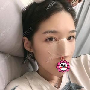 驼峰鼻矫正术后