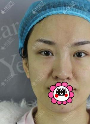 做自体脂肪面部填充没效果的看我在武汉艺星恢复两个月的效果图