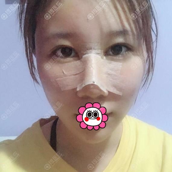 假体隆鼻术后恢复三天