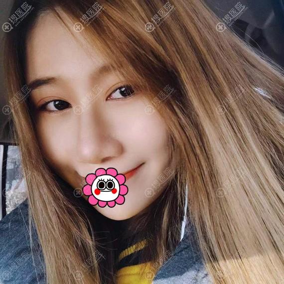北京斯嘉丽宋磊假体隆鼻案例