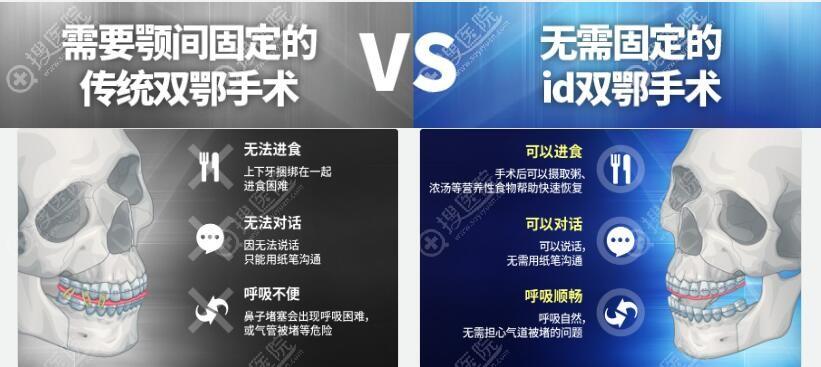 传统双鄂手术和韩国ID双鄂手术对比