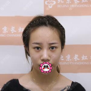 到北京画美做肋软骨隆鼻前