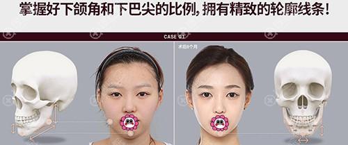 韩国ID面部轮廓技术