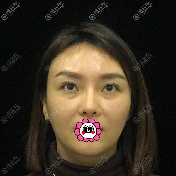 到重庆郑荃丽格做无痕祛眼袋前