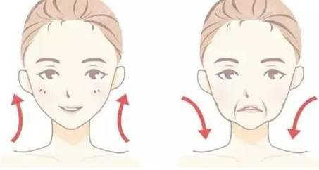 面部提升前后效果