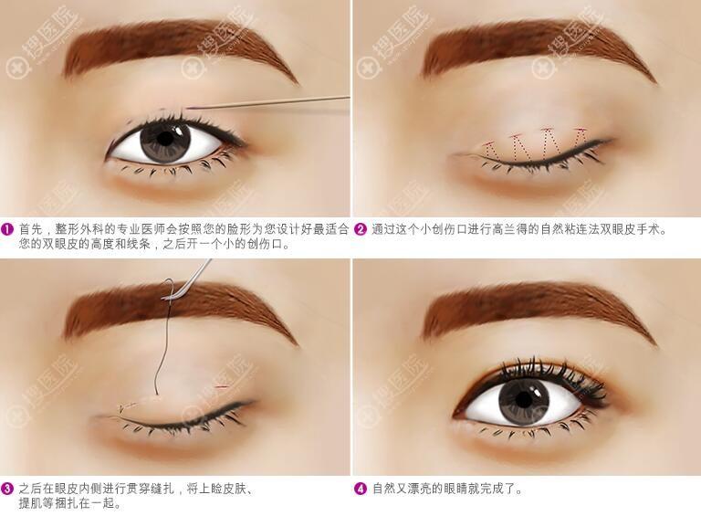 韩国高兰得自然粘连法双眼皮示意图