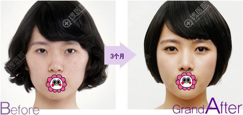 韩国高兰得自然粘连法双眼皮案例对比图