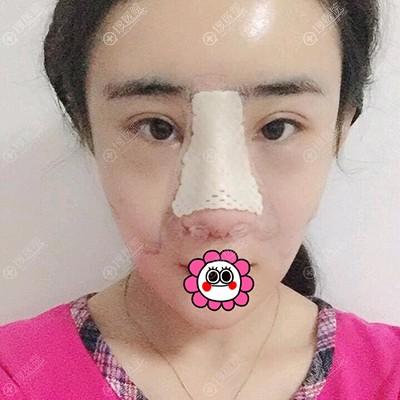 隆鼻术后头天