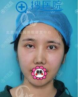 做双眼皮修复就找北京丽星翼美魏志香虽然花了近三万也觉着很值