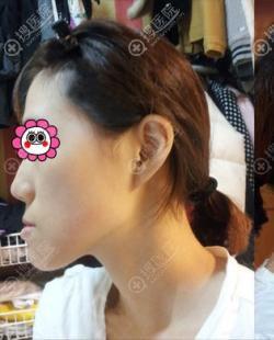 当知道双鄂手术可改善凸嘴时我没犹豫到韩国灰姑娘做后变化很大