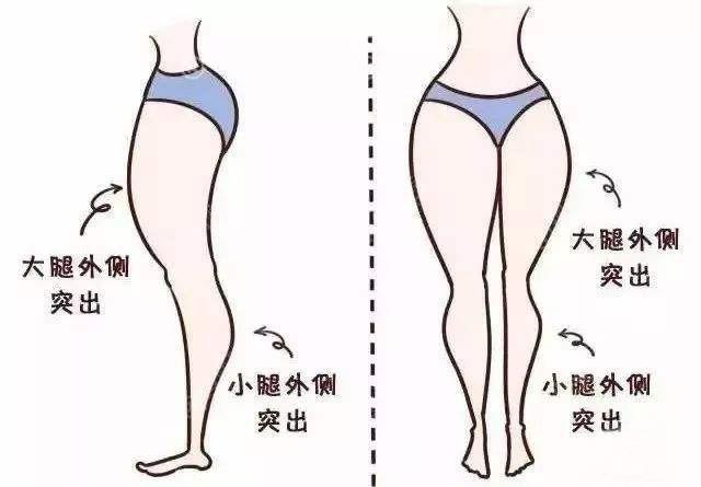 为什么要做大腿吸脂?