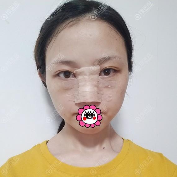 到郑州东方整形做隆鼻后恢复3天